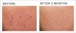 acne scarring post-inflammatory hyperpigmentation
