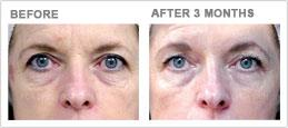 facial wrinkling laxity dehydration