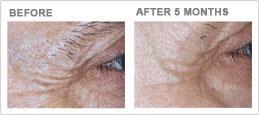 laxity wrinkling