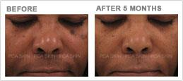 Visible aging–hormonally-induced hyperpigmentation